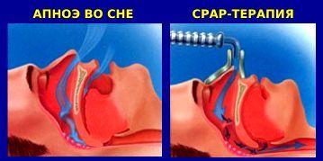 CPAP-терапия во сне - схема